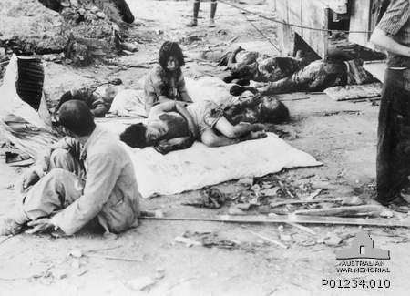 Injured civilian casualties in Hiroshima